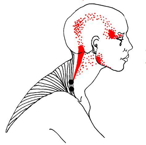 """The upper trapezius refers a """"fish-hook"""" pain pattern up the back side of the neck to the head, and around the temple to the eye"""