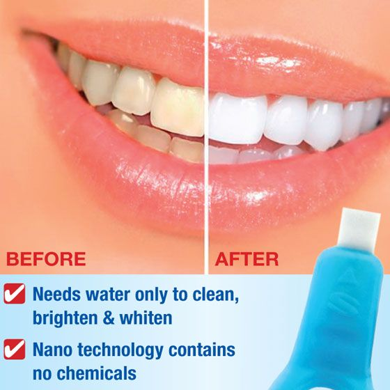 Brightmaxx Teeth Whitening