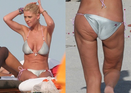 Tara Reid - poor lady.  That's really something she shouldn't be flashing around with a bikini.
