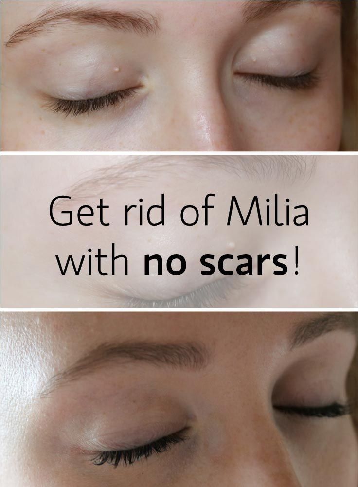 Milia is a skin problem that many of us confront with. I have tried 2 ways of removal - and they work. More details in the blog post