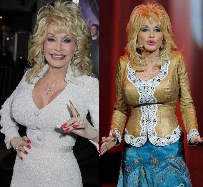 Dolly Parton Liposuction Dolly Parton Plastic Surgery