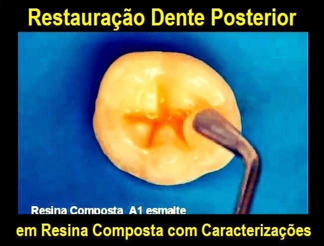 Restauração Dente Posterior em Resina Composta com Caracterizações | Odonto-TV