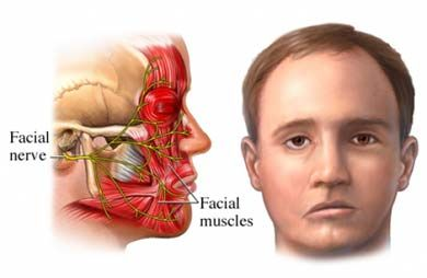 Bell Palsy – Causes, Symptoms, Diagnosis, Treatment and Ongoing care - A peripheral lower motor neuron facial palsy, usually unilateral, which arises secondary to inflammation and subsequent swelling and compression of the 7th (facial) cranial nerve and the associated vasa nervorum.  Read more: http://health.tipsdiscover.com/bell-palsy-causes-symptoms-diagnosis-treatment-and-ongoing-care/#ixzz2Y7aM51TZ