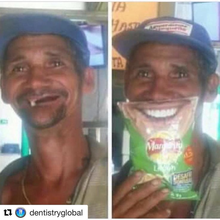 #Repost @dentistryglobal with @get_repost  Happy sunday with this Hollywood smile . .Tag ur friends with this smile ...   . . . .  By  @dentistryscience   _____________________________________. #teeth#tooth#correctsmile#zirconia#cirugiabucal#oralsurgery#dental#dentist#dentistry#dentalhygiene#dentalassistant#dentalstudent#implant#art#medical#smilemakeover#orthodontia#odontologia#fun#crown#veener#surgery#pulp#dentistryworld#stomatology#health#hollywood#smile #happytime