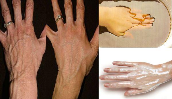 Кожа рук требует особого ухода, ведь они всегда на виду. Не зря говорят, что по рукам женщины можно определить ее возраст.Вернуть рукам молодость не так сложно, и мы научим Вас! Кожарукимеет очень небольшую жировую прослойкуи, следовательно волокна коллагена и эластина начинают разрушаться, эффект старения становится более заметным. Постоянно мытье и воздействие различных химических веществ могут …