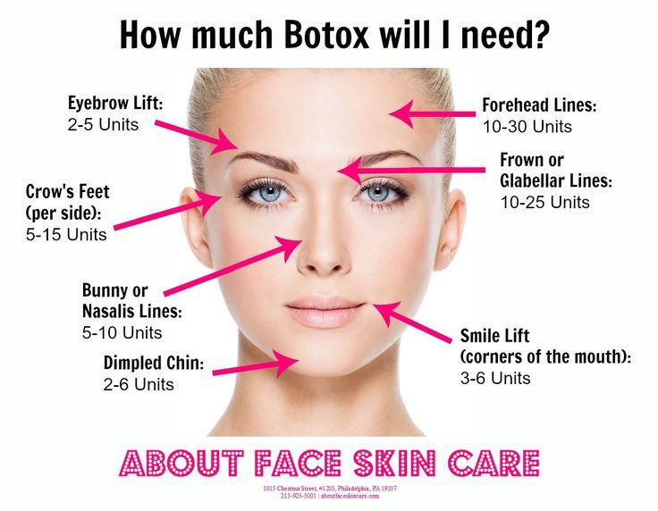 the average amount of botox units needed per facial area botox botox injection sites. Black Bedroom Furniture Sets. Home Design Ideas