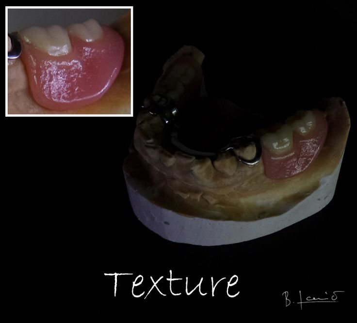 Always practice and experiment on imitating natural gingiva tissue texture
