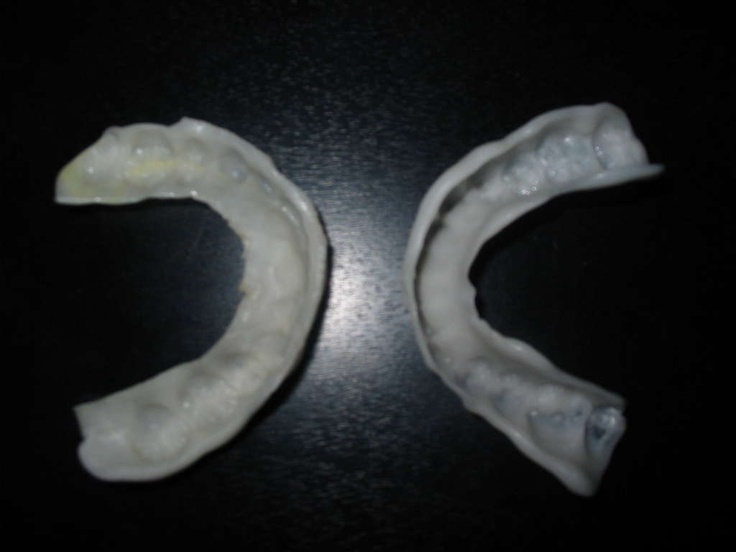 "How to make your own CHEAP night-time retainer.  This is great for having extras to take on vacations, keep at a friend's house, or if you've lost your ""real"" one.   :)"