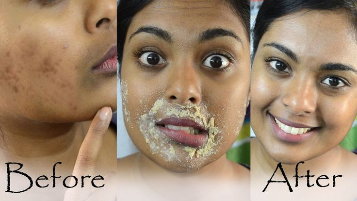 How To Get Rid Of Hyperpigmentation, Dark Upper Lip, Dark Spots & Acne S...