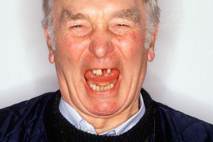 People Bad English Teeth