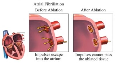 Radiofrequency ablation for sleep apnea and other surgeries. Surgical center Louisville Ky