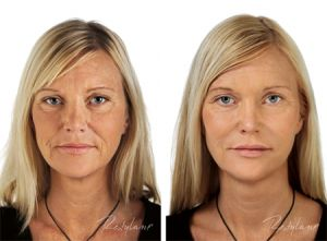 Facial fillers are some of the most popular non-surgical cosmetic treatments available. Often combined with Botox, fillers can temporarily reduce the appearance of age-related wrinkles and folds, including nasolabial folds, lip lines, laugh lines, and marionette lines.