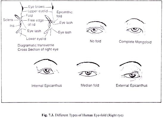 Different Types of Human Eye-Fold (Right Eye)