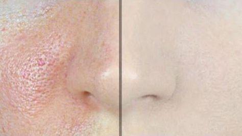 Les personnes ayant une peau grasse ont souvent des pores dilatés et visibles qu'ils détestent. De ce fait, ces gens essaient de rendre leurs pores moins visibles en les rétrécissant. Bien sûr, il y a beaucoup de produits que vous pouvez acheter qui resserrent la peau et réduisent l'apparence des pores dilatés, mais il est également possible de préparer …