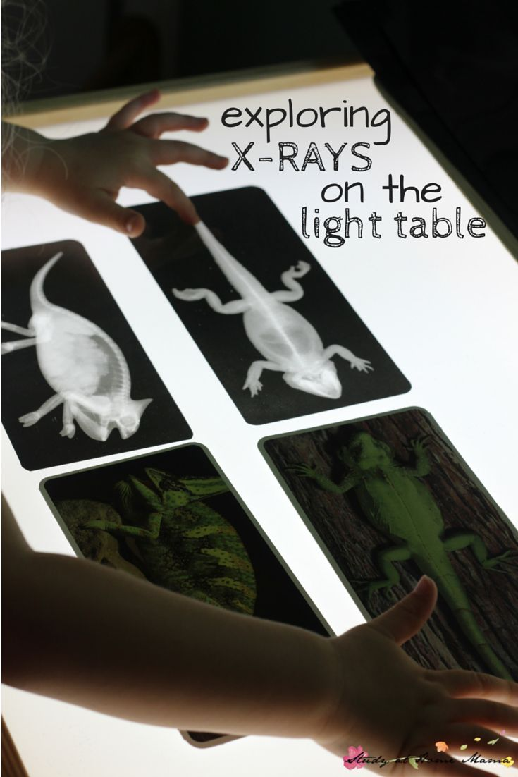 Exploring X-Rays on the Light Table: a simple Reggio provocation, plus a free printable checklist for Montessori Zoology