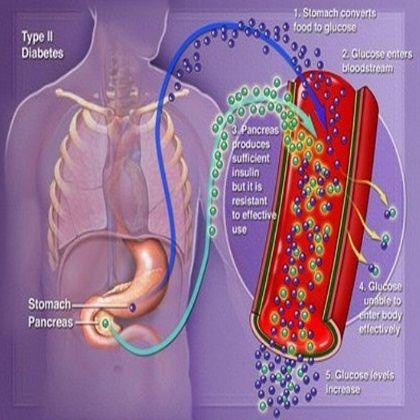 Various Complications Of Type 2 Diabetes Mellitus - InternationalDrugMart.com