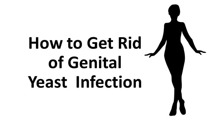how to get rid of a yeast infection female