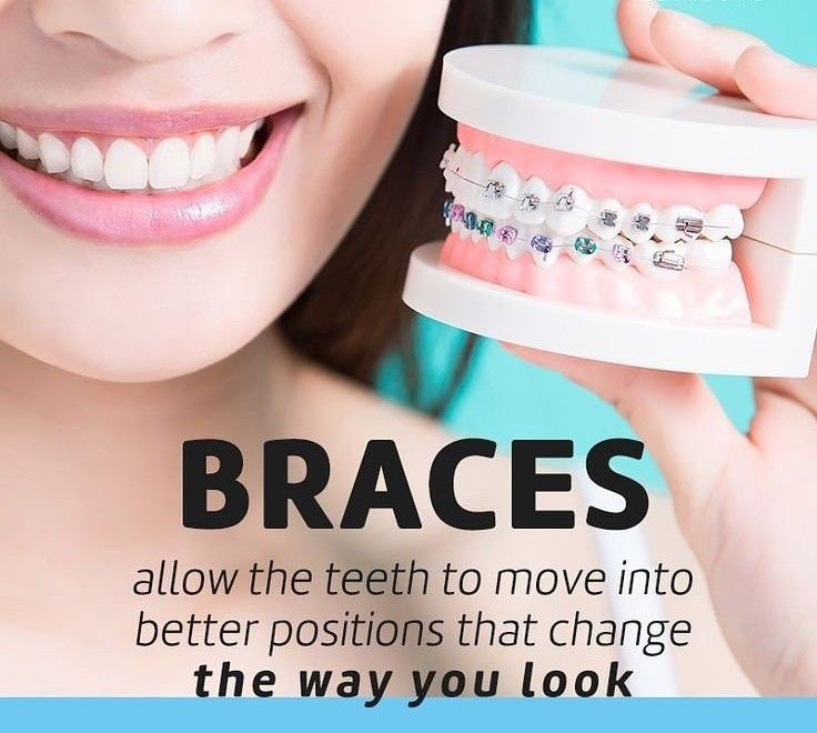 Orthodontics Helps Correct Teeth And Jaws That Are Crowded Have