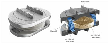 Biomimetic Calcium Phosphate Coatings for Polymeric Artificial Spinal Disc Implants