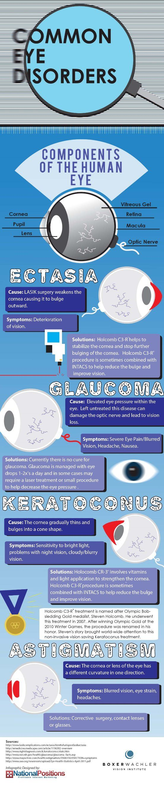 Common Eye Disorders - Take a look at this infographic for some basic info on common eye disorders such as Keratoconus and Glaucoma.   - sponsored