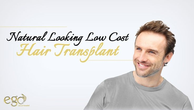 #Natural Looking Low Cost #hairtransplant . Visit: http://www.goego.in  #EgoWellness #bangalore