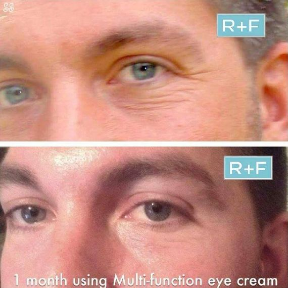 Just one month of Rodan & Fields Multifunction Eye Cream can erase fine lines around your eyes. Also aids with puffiness and dark circles. Message me for discount!