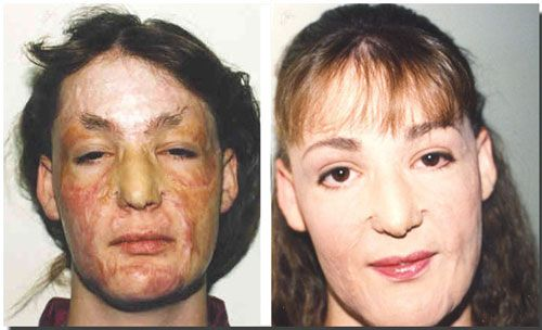 Pictures of people with aids before and after