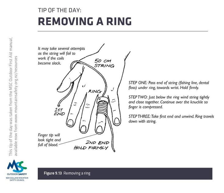 Image Result For How To Remove A Wedding Ring With Dental Floss