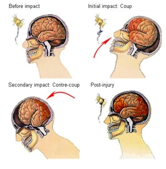 Tramatic Brain Injury, Injury, Post