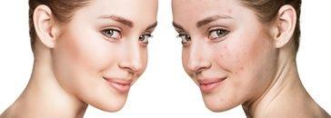 Kosmetyki na trądzik. Czego używać do pielęgnacji cery z trądzikiem i łojotokiem?