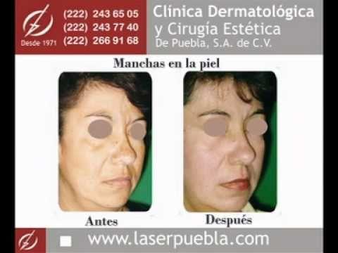 Clínica Dermatológica y Cirugía Estética de Puebla® - Tratamientos Láser para  Acné y Manchas - http://solucionparaelacne.org/blog/clinica-dermatologica-y-cirugia-estetica-de-puebla-tratamientos-laser-para-acne-y-manchas/
