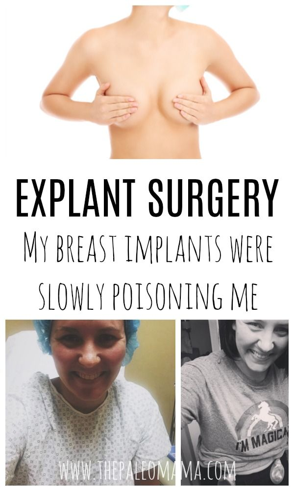 c2a2c124db Breast Implant Illness is creeping into the homes of women all over the  world. The cause — their breast implants. Here s my story.