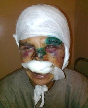 Our dear brother, Oleksandr Tretiak, was severely beaten in Ukraine...( 7-28-14 ) ←← comment from previous pinner.