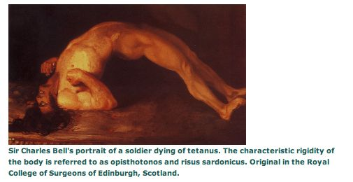 1000+ images about Tetanus on Pinterest | Respiratory ...