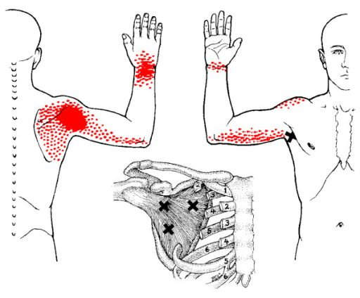 Treatment of myofascial trigger points in patients with chronic shoulder pain: a randomized, controlled trial