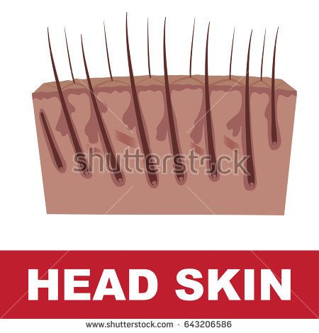 vector scheme of skin of the head with tallow bag and growing hairs