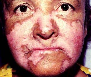 Penyakit Lupus adalah penyakit peradangan kronis yang dapat mengenai kulit, sendi, ginjal, paru, susunan saraf dan alat tubuh lainnya. Gejala tersering adalah bercak kulit, artritis (radang sendi) sering disertai lemah badan dan demam. Perjalanan penyakit Lupus beragam dari ringan sampai berat berselang seling kambuh dan baik. Lupus terutama diderita oleh wanita terutama pada masa subur (wanita 10 kali lebih sering daripada pria).