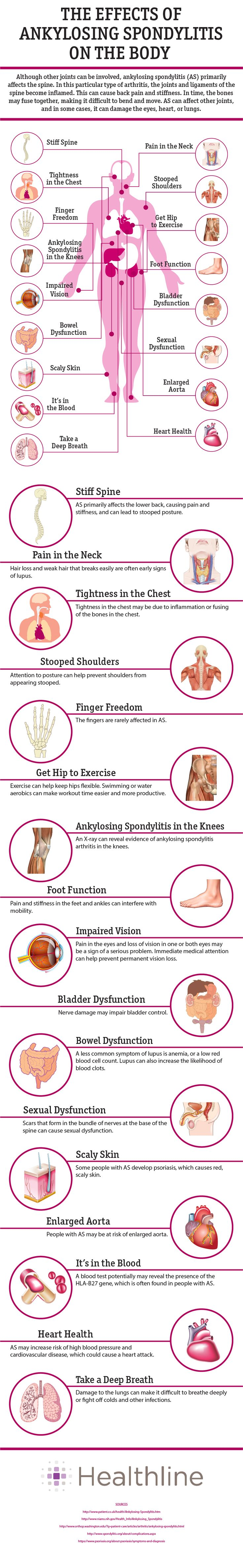 The Effects of Ankylosing Spondylitis on the Body -- nearly perfect!