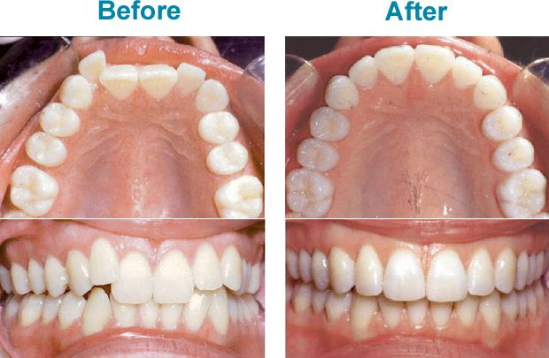 Invisalign teen effectively straightens teeth are absolutely