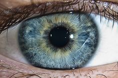 """15 Things About Lazy Eye in Children that Surprise Parents. """"The misconception that a child's vision could not be corrected past the """"critical period"""" was due to misinterpreted scientific research. The circuitry of the brain, which affects amblyopia, can be changed at any age. Patching alone may result in only a short-term fix because the underlying binocular vision problem is not being addressed."""""""