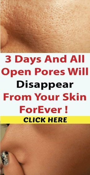 All Open Pores Will Disappear from Your Skin Forever – In Just 3 Days