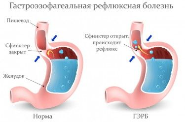 Вы узнаете: Что такое гастроэзофагеальная рефлюксная болезнь. Каковы причины возникновения и симптомы гастроэзофагеальной рефлюксной болезни. Лечение ГЭРБ.