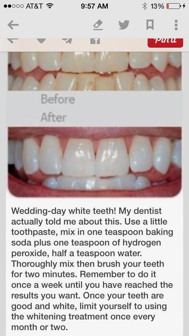 Pin On Baking Soda Teeth Whitening