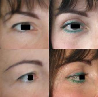 E' possibile risollevare le palpebre superiori con la Blefaroplastica?  Scopriamo insieme la risposta corretta a questa domanda sulla chirurgia estetica del viso:  http://beautydesign.laclinique.it/chirurgia-estetica/blefaroplastica-palpebre-superiori