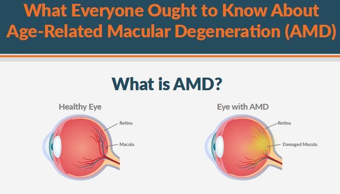 What everyone should know about AMD