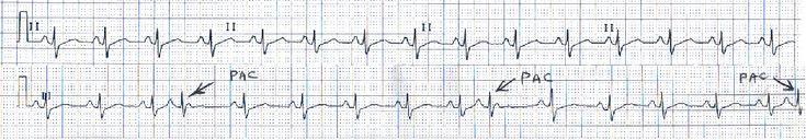 Taurine Role in Cardiology and Cardiac Arrhythmias
