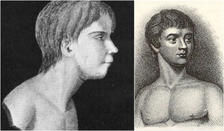 Victor of Aveyron: A feral child who supposedly lived in the French wilderness until he was 12