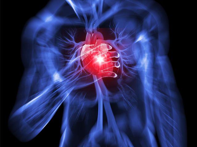 Tisztítsd meg érfalaidat, normalizáld a vérnyomásodat ezzel az egyszerű szerrel!