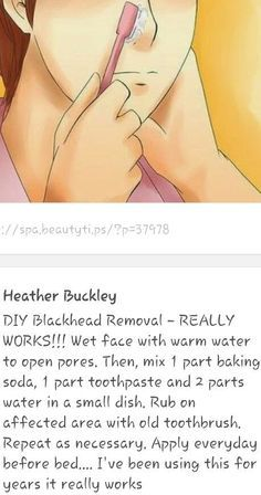 DIY Blackhead Removal – REALLY WORKS!!! Wet face with warm water to open pores. Then, mix 1 part baking soda, 1 part toothpaste and 2 parts water in a small dish. Rub on affected area with old toothbrush. Repeat as necessary. Apply everyday before bed…. I've been using this for years it really works   best stuff
