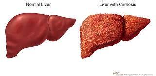 Cirozele hepatice sunt suferinte cronice cu evolutie progresiva, caracterizate morfologic prin http://www.medpont.ro/medicina-interna/ciroza-cauze-si-simptome/